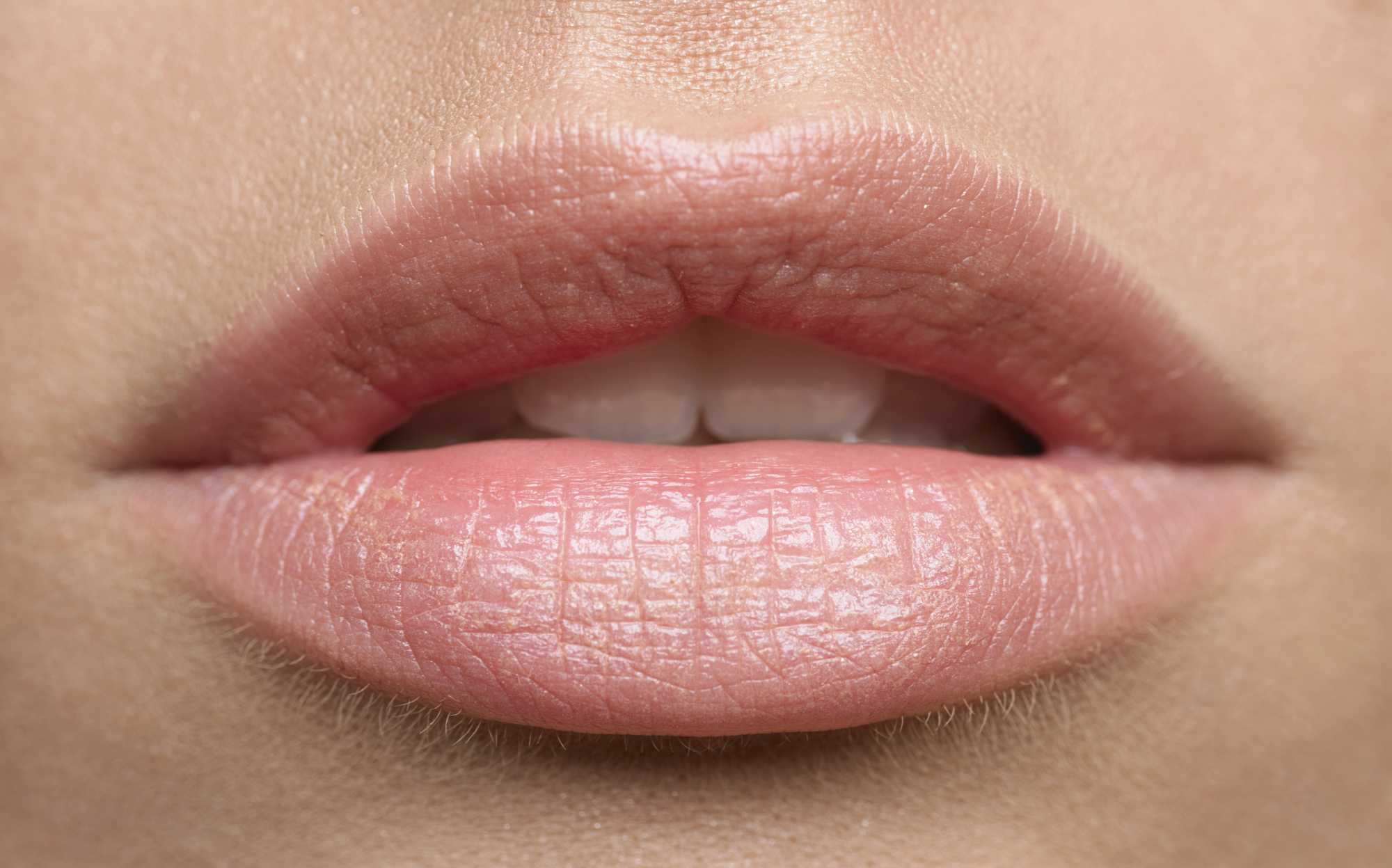 ¿Cómo cuidar tus labios en invierno?