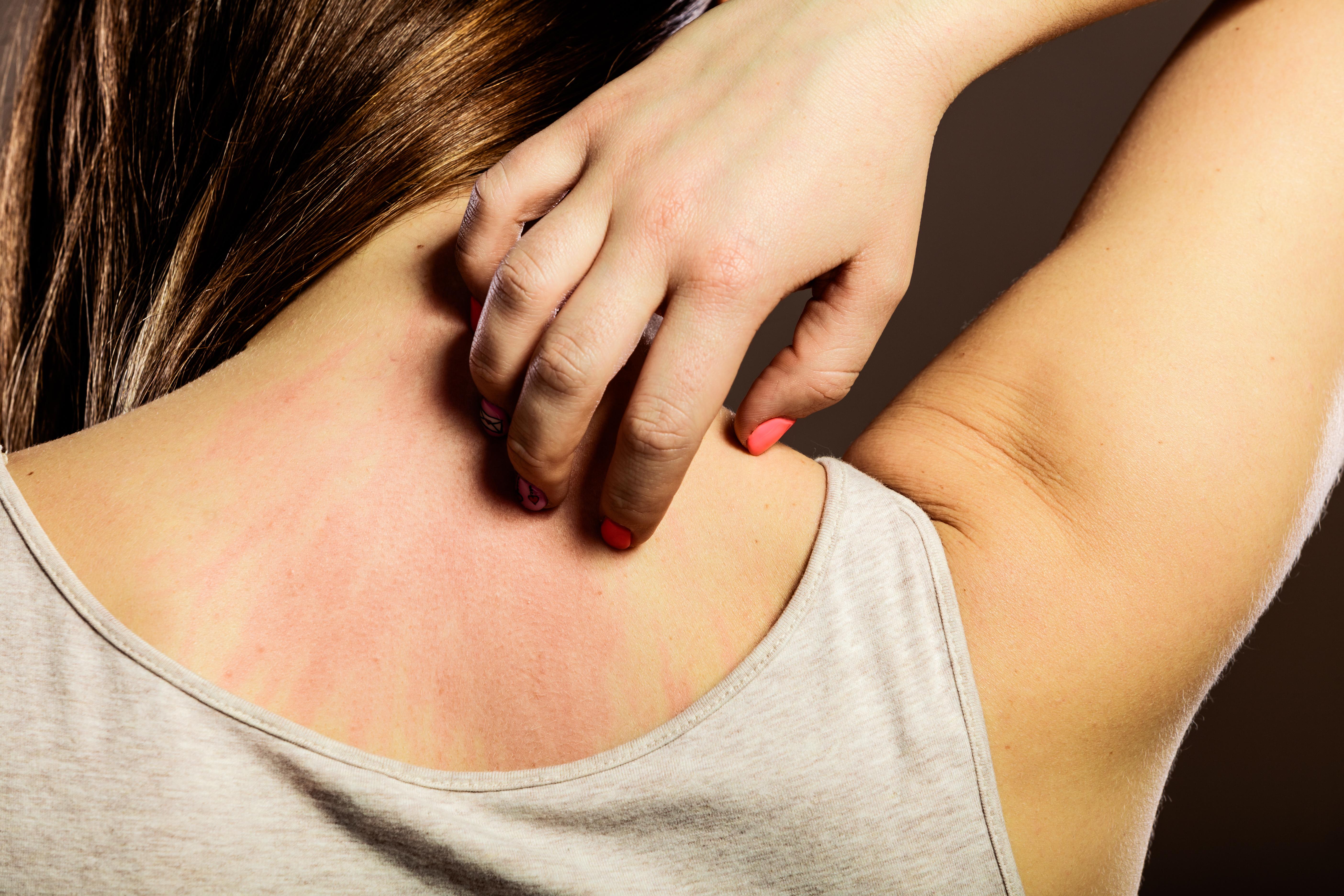 La dermatitis atópica ¿Síntomas? ¿Causas?